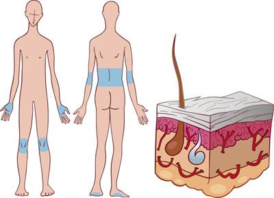 skin-wound