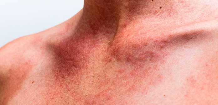 5 Best Essential Oils for Sunburn