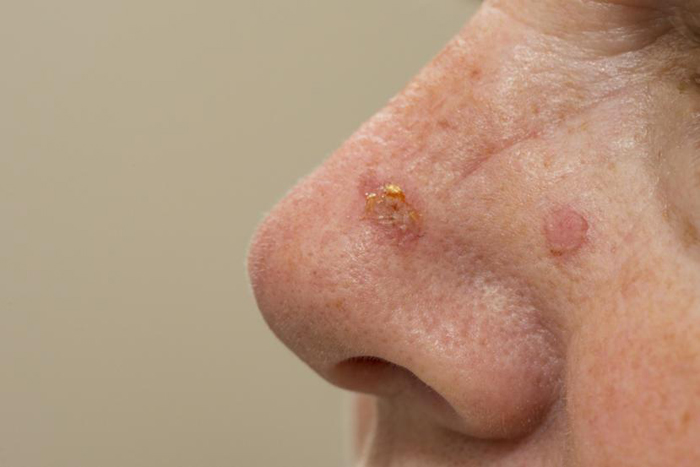 Actinic Keratosis: Symptoms and Treatment