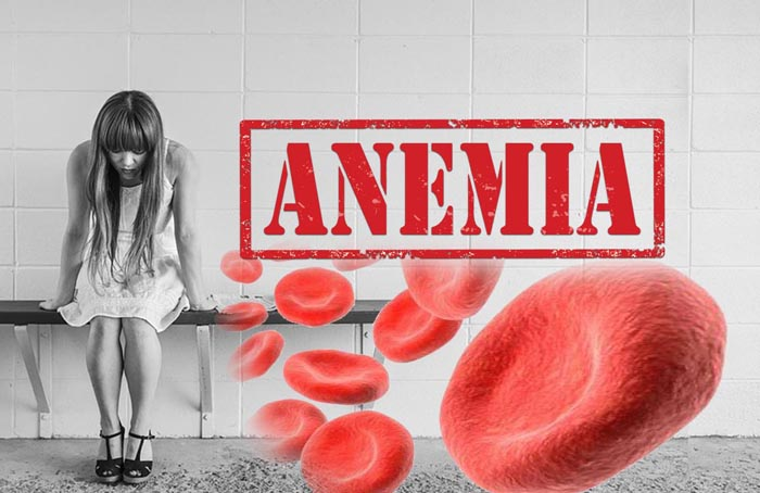 3 Ways To Cure Anemia Naturally