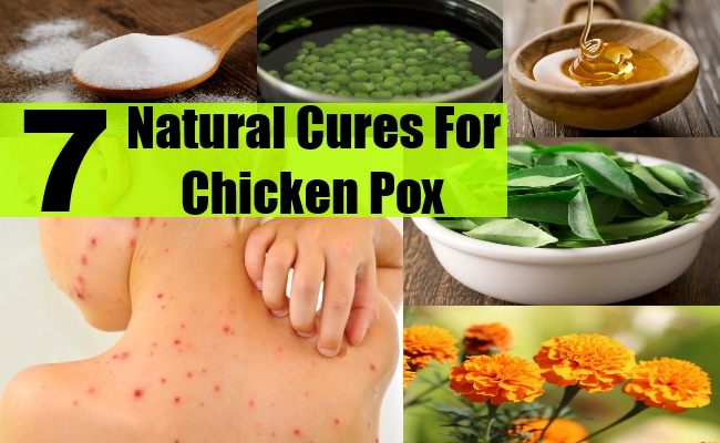Chicken Pox – Symptoms And Treatment
