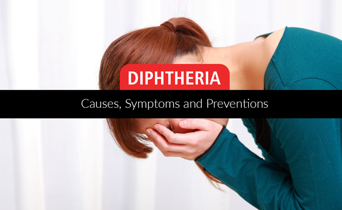 Diphtheria – Causes, Symptoms And Home Remedies