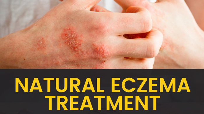 9 Proven Home Remedies For Eczema