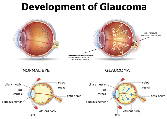 Glaucoma – Causes, Symptoms And Treatment