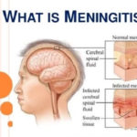 Meningitis – Symptom And Treatment