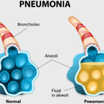 Pneumonia Treatment, Causes And Symptoms