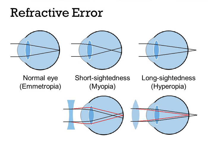 Home Remedies For Refractive Error