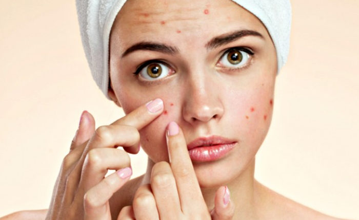 Acne Home Remedies – Pimples