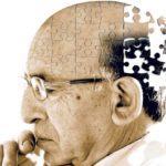 Top 8 Alzheimer's Disease Natural Treatment