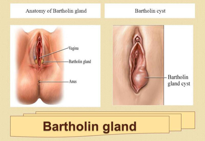 Amusing gland infection vulva