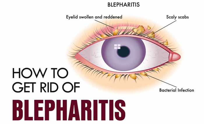 Blepharitis – Causes, Symptoms And Treatment