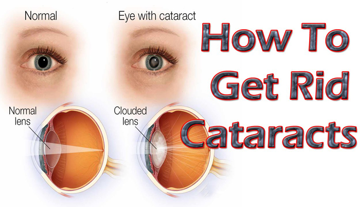 Eye Cataract