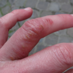 Dyshidrotic Dermatitis