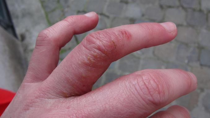 Dyshidrotic Dermatitis: Causes and Treatment