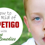 4 Top Home Remedies To Treat Impetigo