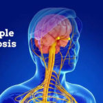 5 Multiple Sclerosis Home Remedies To Help Symptoms