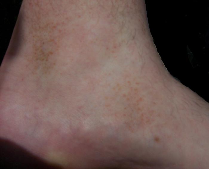 Schamberg's Disease