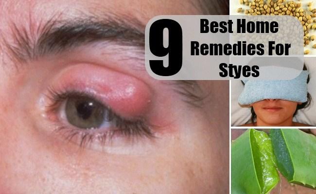 Stye Home Remedies