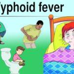 typhoid fever