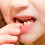 What To Do If a Tooth is Damaged