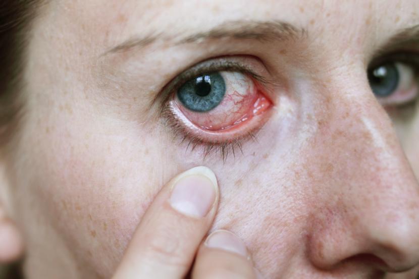 Conjunctivitis (Pinkeye): Symptoms, Causes and Home Remedies