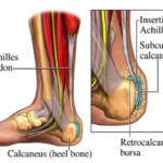 Achilles Tendon – Causes, Symptoms And Treatment