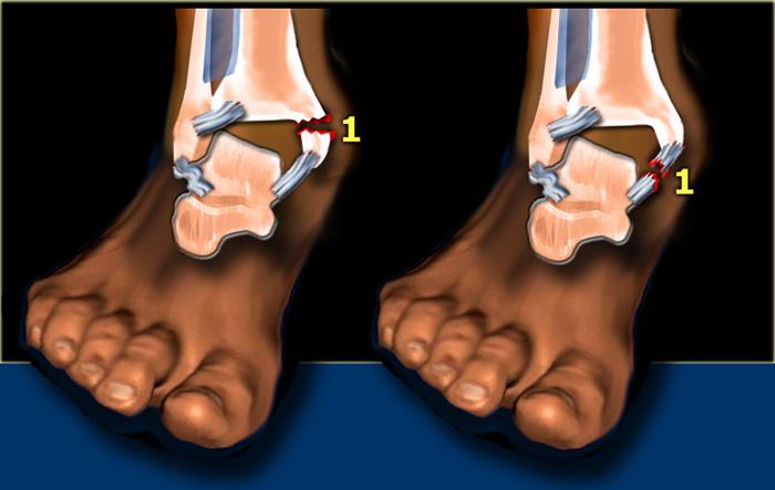 Ankle Bone Injury
